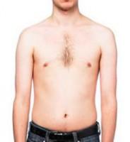 Skinny Fat Syndrome Strikes